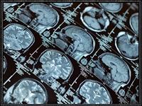 Пересадка человеческой головы